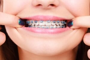 Loose, Broken, or Poking Orthodontic Appliance? Here's How to Fix It